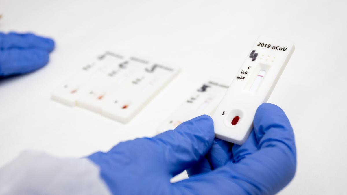 Cuatro medidas innecesarias contra el coronavirus, segun la OMS