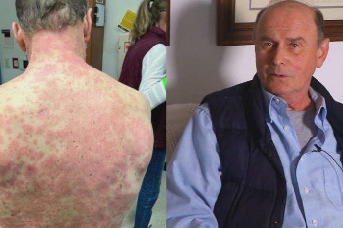Recibo la vacuna de Johnson & Johnson y sufrio una agresiva reaccion en la piel