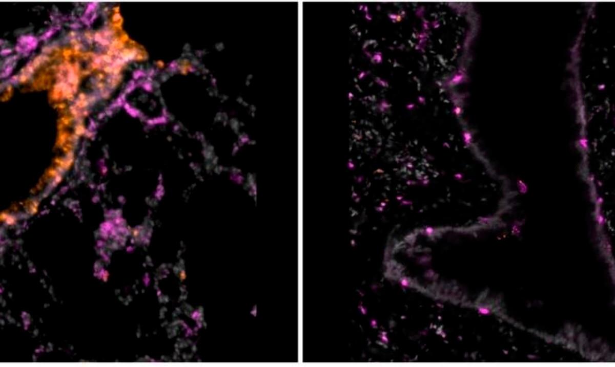 Una terapia con nanocuerpos inhalables previene el COVID-19 en hamsters