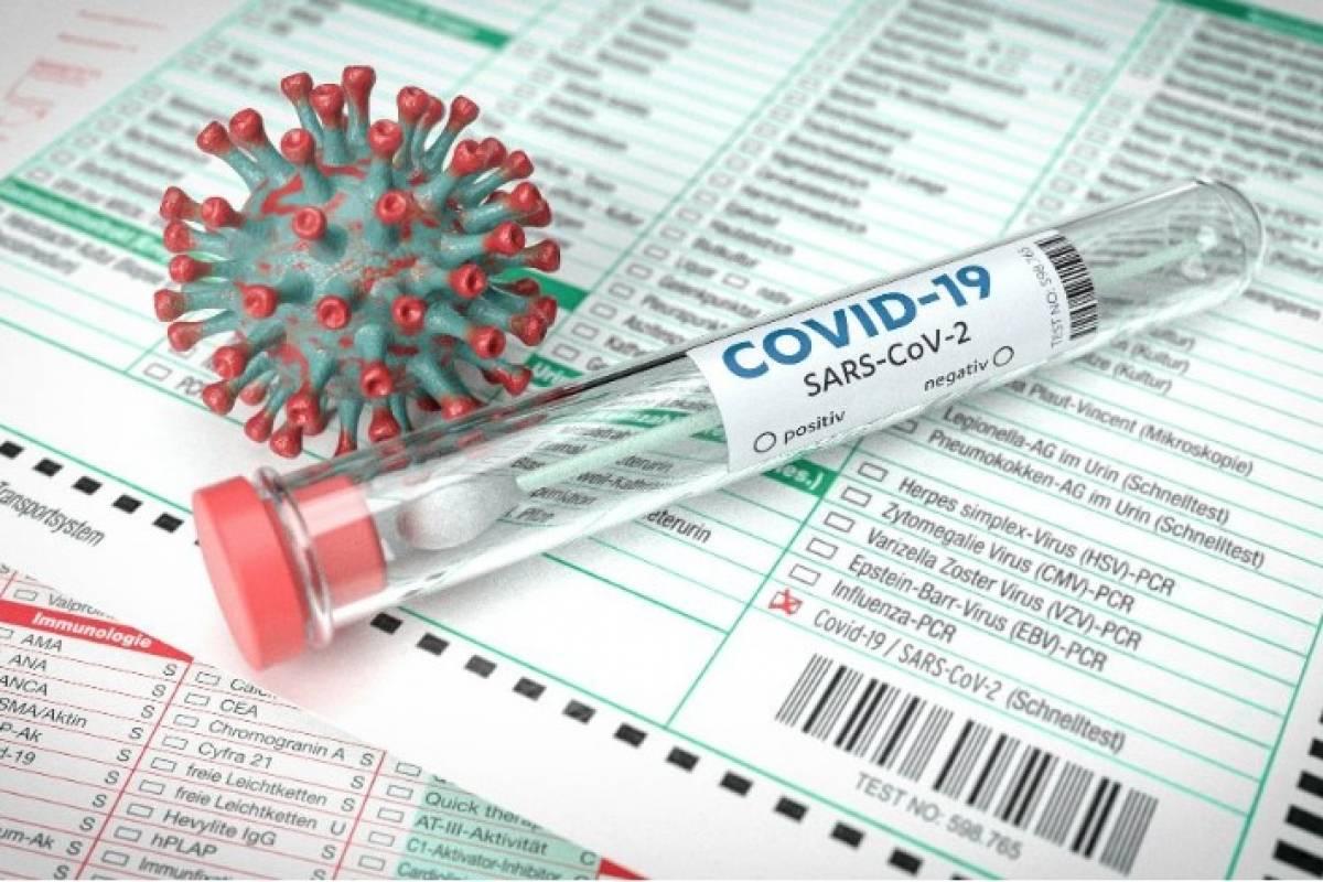 Una muerte y 47 casos positivos confirmados de COVID-19