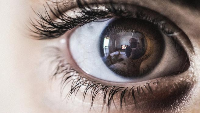 La aniridia es la ausencia total o parcial del iris del ojo.