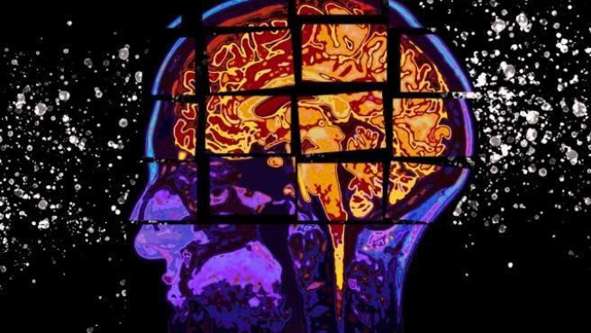 Foto recurso. Cerebro, enfermedad de Alzheimer.